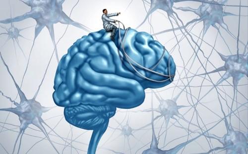 Breinmanagement
